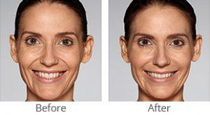 Restylane® Refyne/Defyne Facial Filler - Case #36155