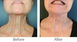 ThermiRase® Platysma Neck Cords - Case #36001