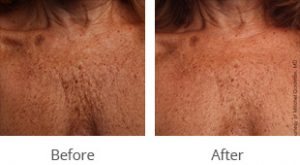 Ultherapy® Décolletage Rejuvenation - Case #36150