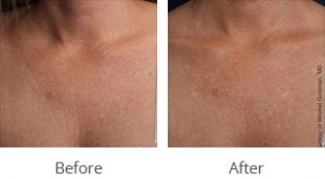 Ultherapy® Décolletage Rejuvenation - Case #36151