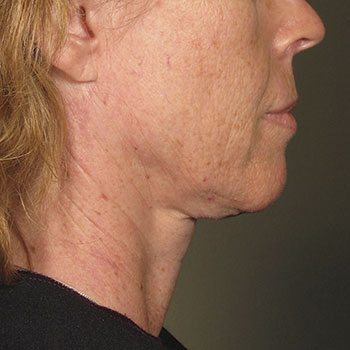 Before Ultherapy® for Lower Face