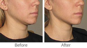 Ultherapy® for Lower Face