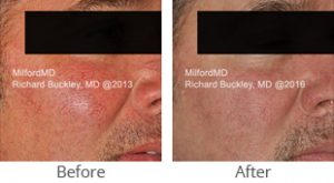 VBeam® Vascular Reduction Before & After - Case #36152