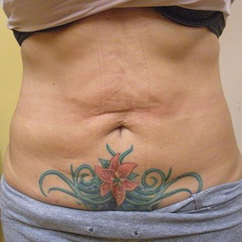 Before Venus Freeze™ Abdomen Skin Tightening