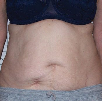 After Venus Freeze™ Abdomen Skin Tightening