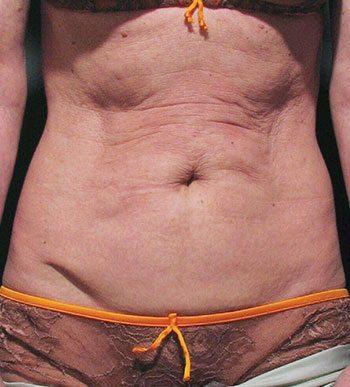 Before Venus Freeze™ Abdomen Skin Tightening