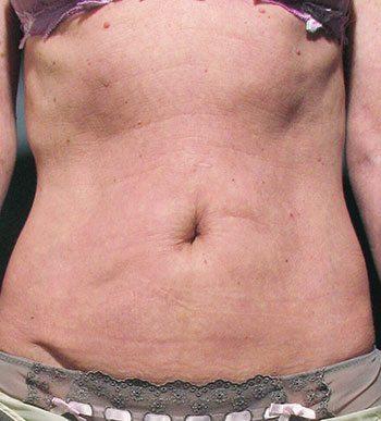 After Venus Freeze™ Abdomen Skin Tightening