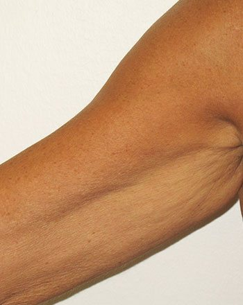 After Venus Freeze™ Arm Skin Tightening