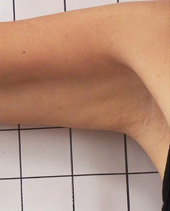 After Venus Freeze™ Arm Skin Tightening
