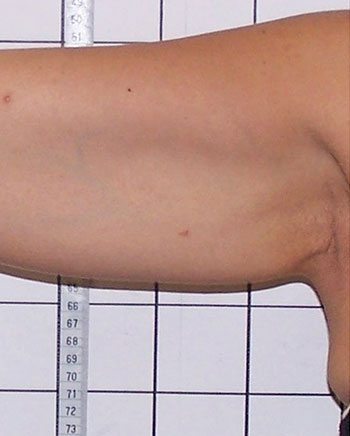 Before Venus Freeze™ Arm Skin Tightening