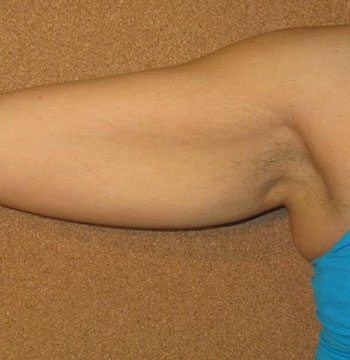 Before Venus Freeze™ Arm Skin Tightening