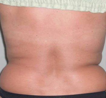 After Venus Freeze™ Back Skin Tightening