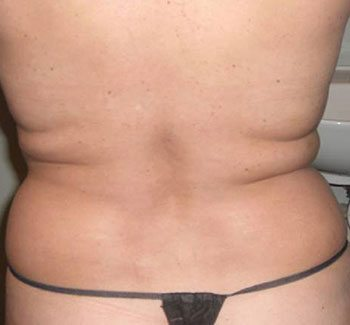 Before Venus Freeze™ Back Skin Tightening