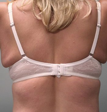 Before Venus Freeze™ Back Skin Tightening