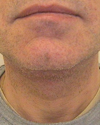 After Venus Freeze™ Male Face Skin Tightening