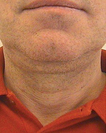 Before Venus Freeze™ Male Face Skin Tightening
