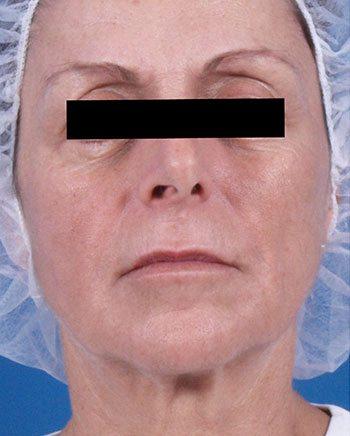 After Venus Freeze™ Face & Neck Skin Tightening