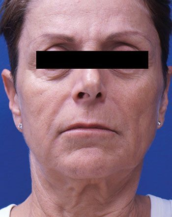 Before Venus Freeze™ Face & Neck Skin Tightening
