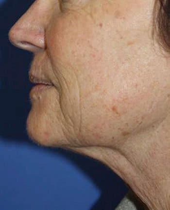 After Venus Freeze™ Face & Neck Skin Tightening