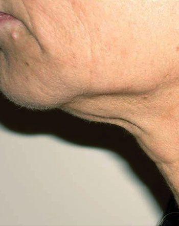 Before Venus Freeze™ Face & Neck Skin Tightening