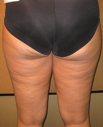 After Venus Freeze™ Thigh Skin Tightening