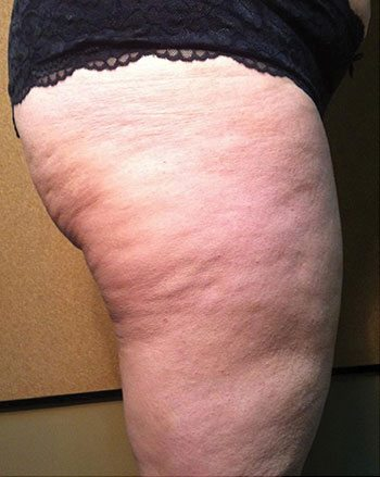 Before Venus Freeze™ Thigh Skin Tightening
