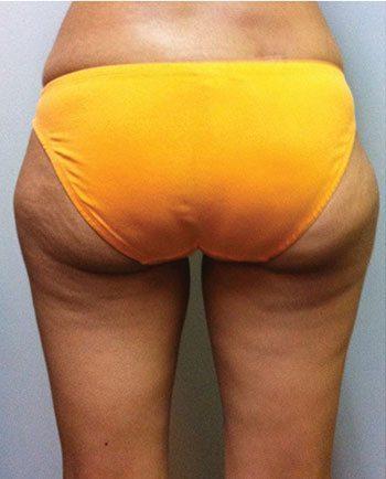 After Venus Freeze™ Thigh Skin Tightening