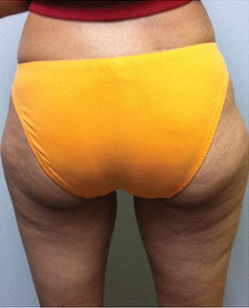 Before Venus Freeze™ Thigh Skin Tightening