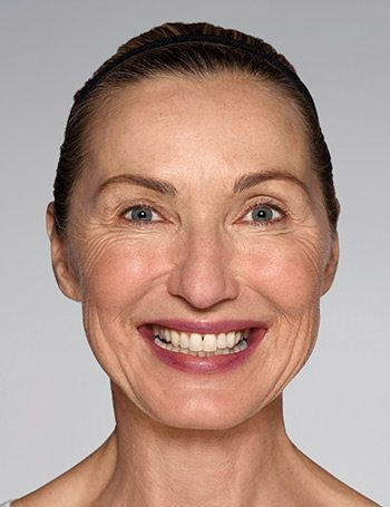 Before Restylane® Refyne/Defyne Facial Filler