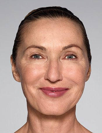 Before Restylane® Refyne/Defyne Facial Filler