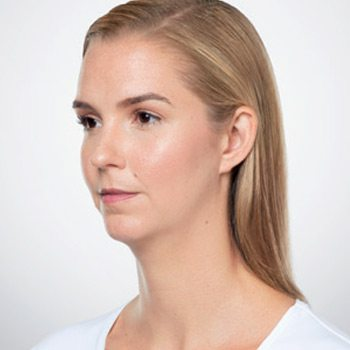 Before Kybella® Neck Tightening Treatment