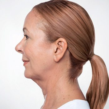 Before Kybella® Neck Tightening Treatment