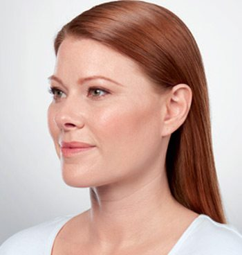 After Kybella® Neck Tightening Treatment