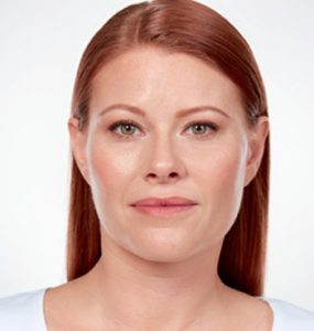 Kybella Neck Front After Treatment