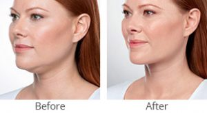 Kybella® Treatment Before & After - Case #36186