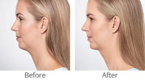 Kybella® Treatment Before & After - Case #36187