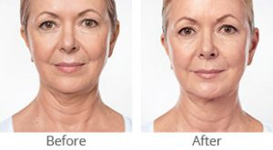 Kybella® Treatment Before & After - Case #36188