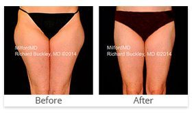 Liposuction Scranton PA