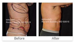 Milford PA Liposuction