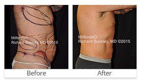 Milford PA Liposuction