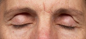 Thermage Eyelid Lift Before
