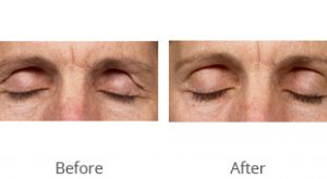 Thermage® Eyelid Lift Before & After - Case #36189