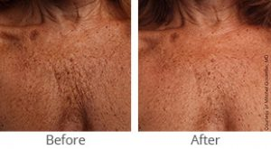 Ultherapy® Décolletage Rejuvenation - Case #36149