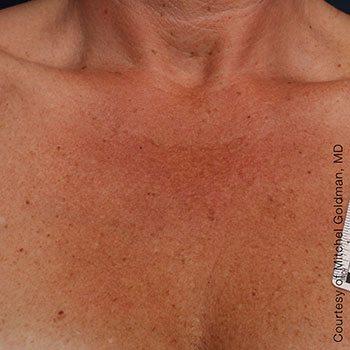 After Ultherapy® Décolletage Rejuvenation
