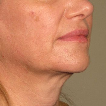 After Ultherapy® for Lower Face