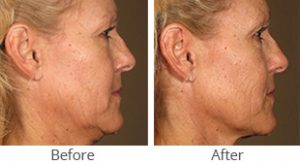 Ultherapy® for Full Face