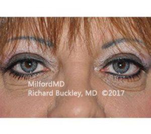 MilfordMD Skin Care Product Line | Blepharoplasty Upper Eyelid Tightening After