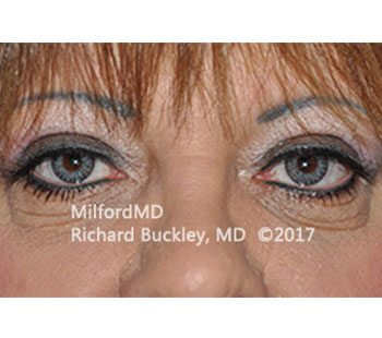 After Blepharoplasty Upper Eyelid Tightening