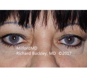 MilfordMD Skin Care Product Line | Blepharoplasty Upper Eyelid Tightening Before