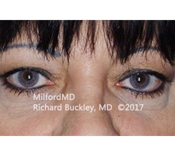 Before Blepharoplasty Upper Eyelid Tightening